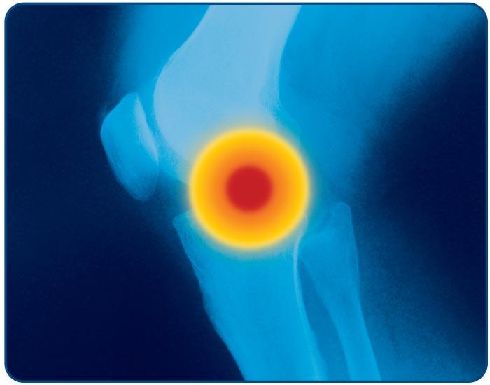 gyógyszer az ízületi mobilitás javítására