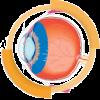 Topomega-szem